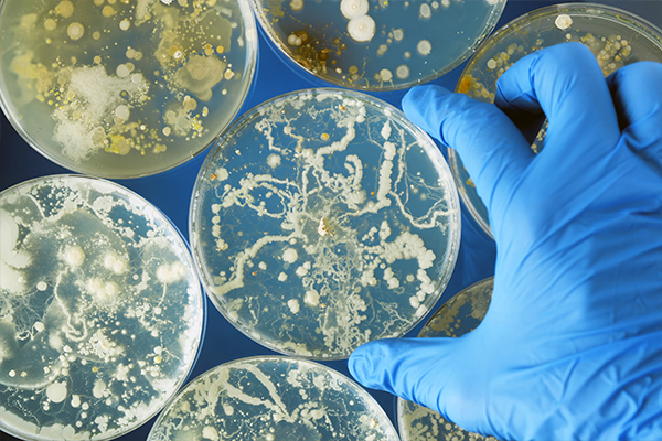 What Is the Difference Between a Bacterial Infection and a Viral Infection?