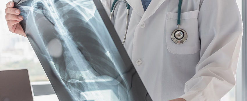 When Should I Get an X-ray?